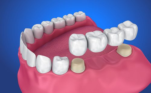Cosmetic Dental Bridges - Dentistry of Highland Village