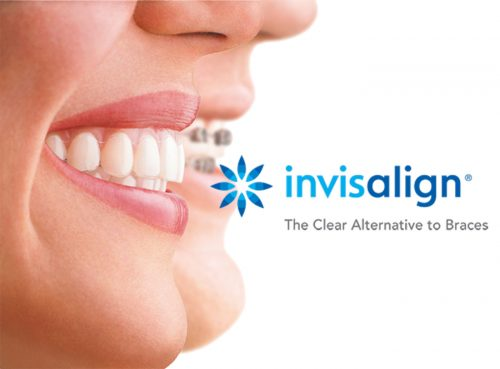 Certified Invisalign Provider in Houston, TX - Dentistry of Highland Village