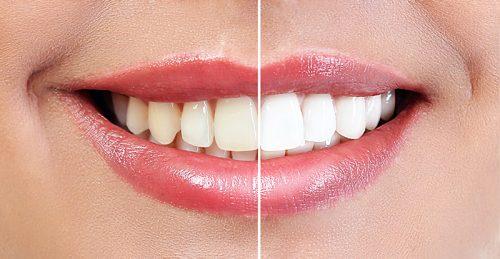 ZOOM! Teeth Whitening in Houston