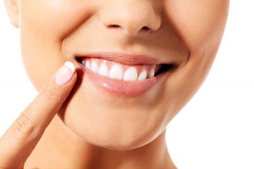 Cosmetic Dental Bonding - Houston
